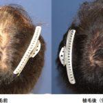 [AGA治療]若ハゲが植毛をしてからの頭髪の経過