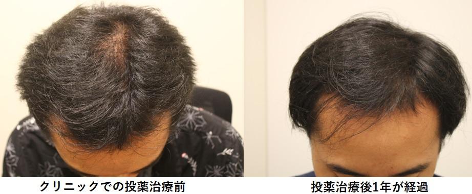 [AGA治療]若ハゲがクリニックで投薬治療を開始してからの頭髪の経過Part1