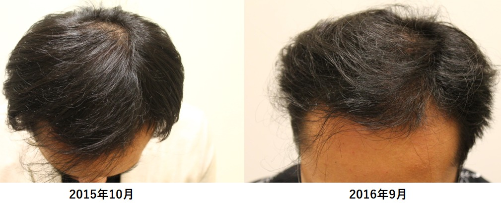 [AGA治療]若ハゲがクリニックで投薬治療を開始してからの頭髪の経過Part2